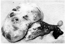 Figure 2. Adnexectomy specimen before follicular aspiration