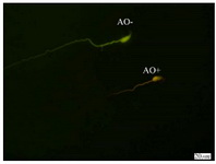 Figure 3. Spermatozoa with native double-stranded DNA (AO-) and denatured DNA (AO+); Acridine Orange staining (×100 eyepiece magnification)