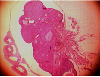 Figure 2. The ovary. In the ovarian tissue, the cysts were mainly disappeared by Chamomile administration.