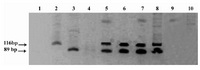 Figure 1. Nested PCR products for hupB gene resolved on 8% polyacrylamide gel