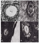 Figure 2. Atretic follicles belong to the ovary 63 days after BUAL bilateral uterine artery ligation. A: Normal follicle from the control-sham group; B: Atretic follicle (201-300 µm) form with GCs dissociation (Arrow) around the vacuolated oocyte (Arrow head); C: Atretic follicle (101200 µm) with pyknosis of the oocyte and D: Atretic follicle (301400 µm) with increased thickness of ZN (Arrow). H&E staining, (A: 600×, B: 400×, C: 100× and D: 400×)