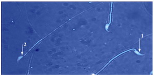 Figure 2. EP group: sperm head with mature nuclei is light blue; 1: and sperm head containing immature nuclear chromatin is dark blue; 2: (Aniline blue ×1000)
