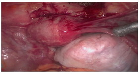 Figure 1. Primary laparoscopy feature of the tumor in a 24 year old patient, December 2012, Rasoul-e-Akram hospital, Tehran, Iran