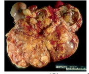 Figure 1. Gross photograph of malignant mixed germ tumor: The solid fleshy cut surface with few cysts along with areas of necrosis and haemorrhage