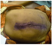 Figure 3. The abdominal wall after removal of skin stitches on the 7th post operative day