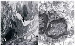 Figuer 6. Ultrastructural micrograph of seminiferous tubule in group of 25 μM/kg: myoepithelium (Arrow), necrotic spermatogonia (+), B: necrosis of spermatid. A: magnification 4400, B: magnification 7000