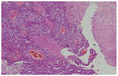 Figure 2. Pathology report, yolk sac tumor component of the ovarian germ cell tumor
