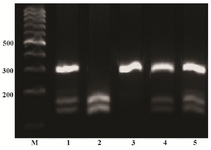 Figure 1. PCR-based restriction analysis of the +49 A/G polymorphism was shown on 2% agarose electrophoresis. The polymorphic region was amplified by PCR resulting in a 289 bp fragment (AA wild type homozygote) in line 3 after size marker. Digestible fragments, 159 and 130 bp, represent the GG mutant homozygote (line 2). The presence of three bands 289, 159 and 130 which belong to heterozygote individuals (line 1, 4 and 5). M: mar