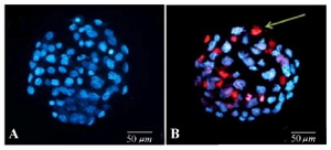Figure 2. Mouse blastocysts on day 5 of development. A) In control group, no necrotic cell was observed using excitation wavelength (350-461 nm) which confirmed that all the cells of the stained blastocyst were alive. B) Experimental blastocyst with major irregularities in size, color and density of individual cells under fluorescence microscopy with excitation wavelength (535-617 nm). Red blastomeres show necrotic cells (green line) (200x)
