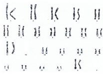 Figure 2. Cytogenetic analysis of female proband