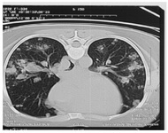 Figure 1. Pulmonary Metastasis in invasive mole