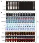 Figure 2. A: Gel electrophoresis pattern of LAMP amplicons on 1.5% agarose gel; B: Details of eight different visualization methods to analyze LAMP products. Lane M: DNA size marker (100 bp), lanes and tubes 1-7: positive samples, lanes and tubes 8-15: negative samples, lane and tube N: non-preg-nant women sample (negative sample) and, lane and tube P: men sample (positive control)