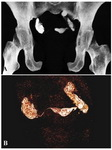 Figure 5. A: MIP and figure B: VRT image showing bilateral hydrosalpinx with minimal spill on right side