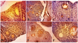 Figure 2. Photo micrographs of immunohistochemical ex-pression of TNF-α in the primary and secondary follicles. (A) normal ovary; (B) strict expression of TNF-α is observable in these follicles in PCOS group; (C, D, E, F) TNF-α expression is restricted to blood vessels and ovary stroma (filled arrow) in curcumin groups (100, 200, 300, 400 mg/kg BW). Mag-nification ×100 , (Scale bar, 25 μm)