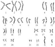 Figure 1. Karyotype image showing normal 46,XY chromosome spread in SCOS case